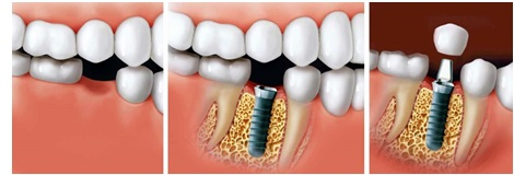 Multiple tooth Dental Implant