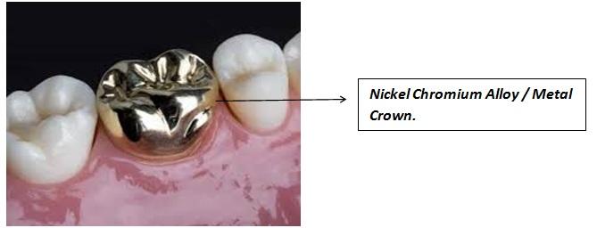 Nickel Chromium Alloy / Metal Crown.