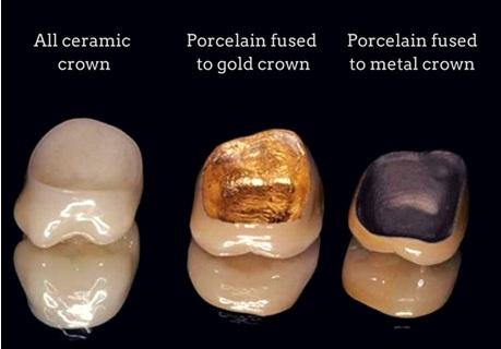 Porcelain Fused Metal Crown