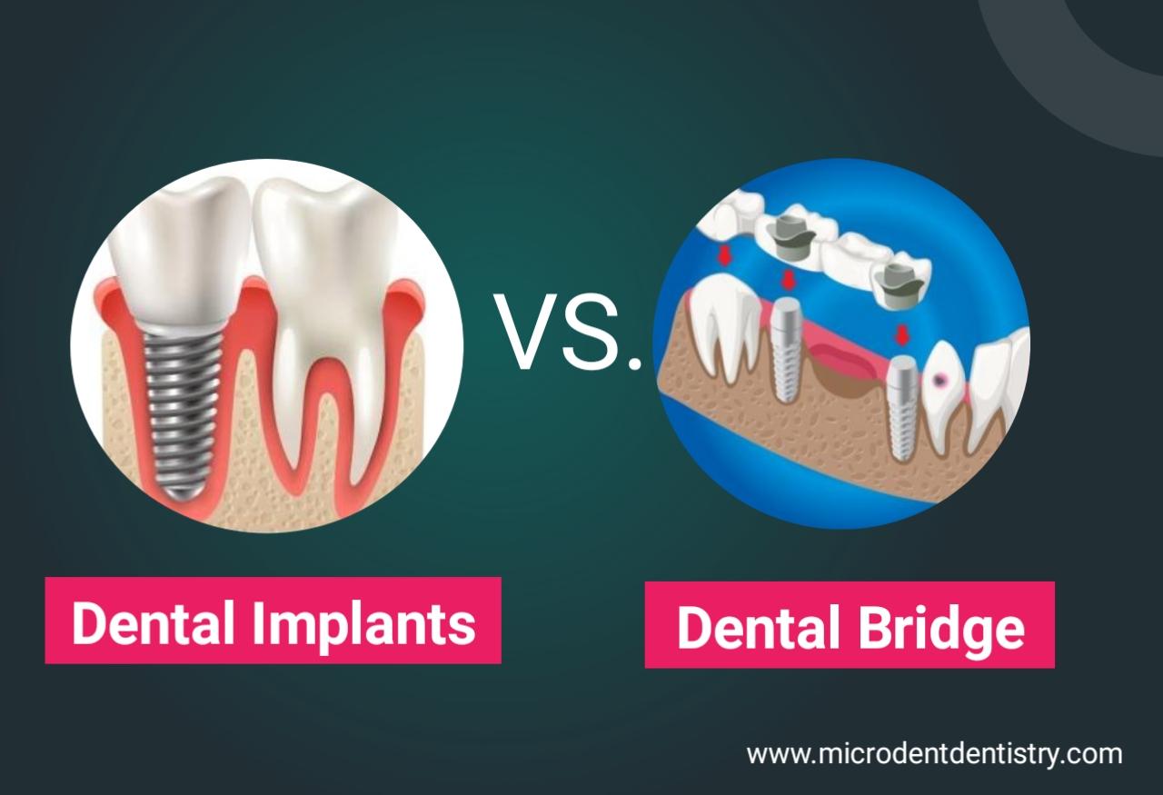 dental implant vs dental bridges