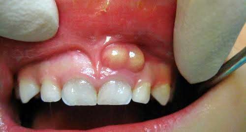 Picture of Gum Boil in children