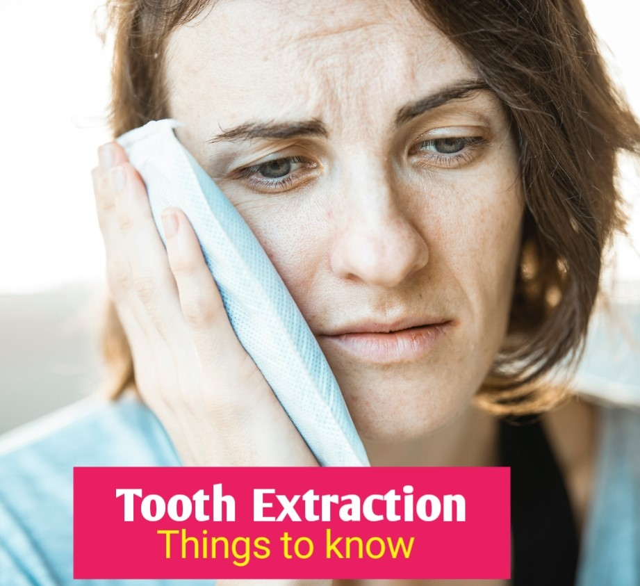 tooth extraction - things to know