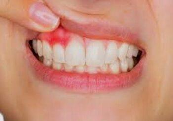 Gingivities